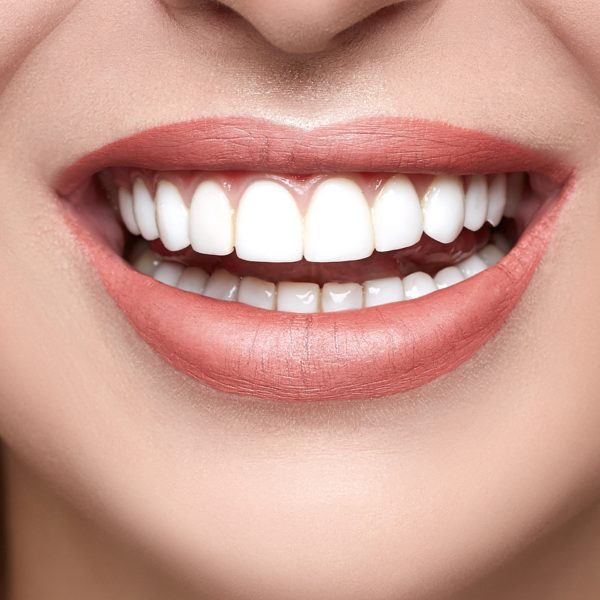 Cosmetic Dentistry - Dr Vito Gallucci